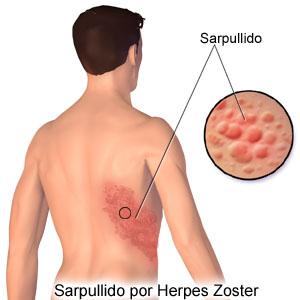 what is herpes simplex virus spread