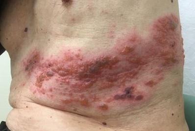 imagen de la culebrilla o herpes zoster